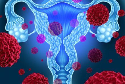 Rahim kanseri nedir?